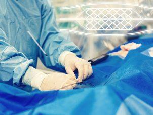 endovaskuler
