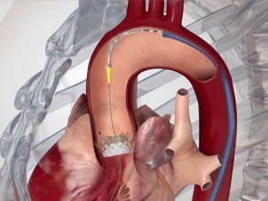tavi-ameliyatsiz-kalp-kapak-degisimi